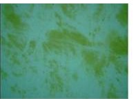 How to get rid of algae in your swimming pool for Black spots in the swimming pool