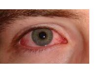 How To Prevent Skin And Eye Irritation From Your Swimming